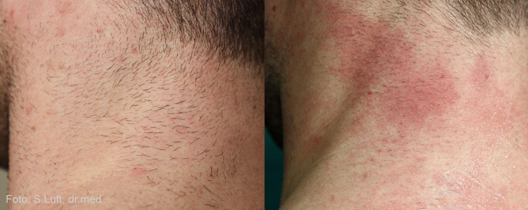odstranjevanje dlak