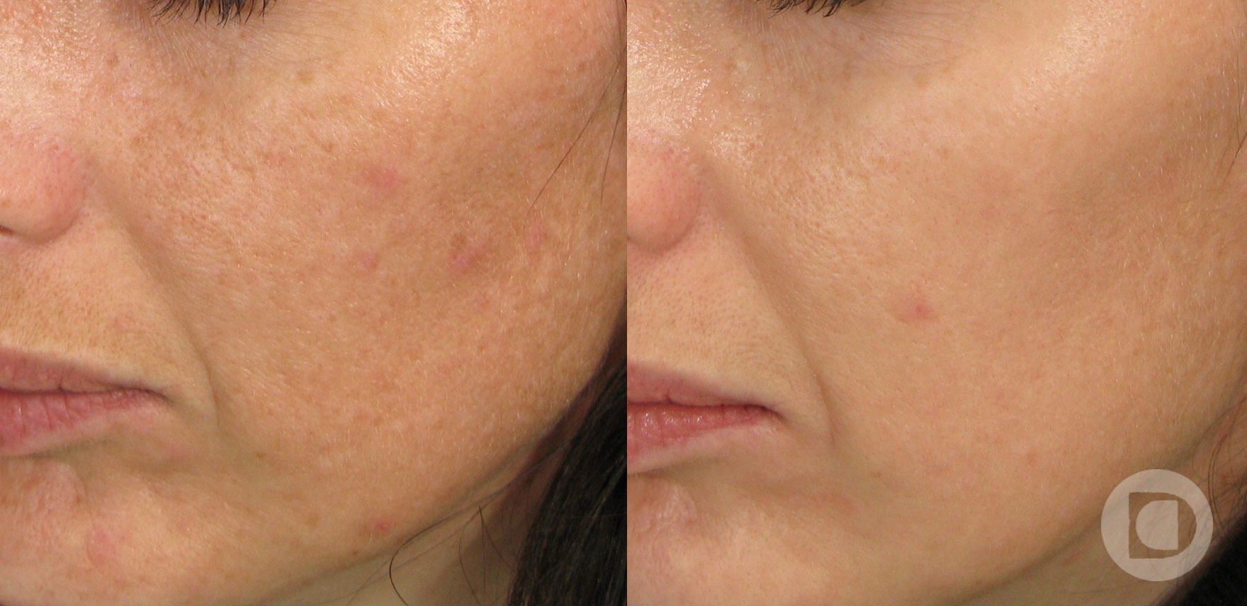 motnje pigmentacije
